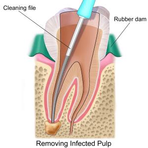 Endodontics-root-canal