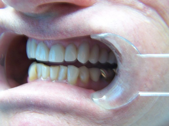 Martin Crist After Teeth Close Up 2