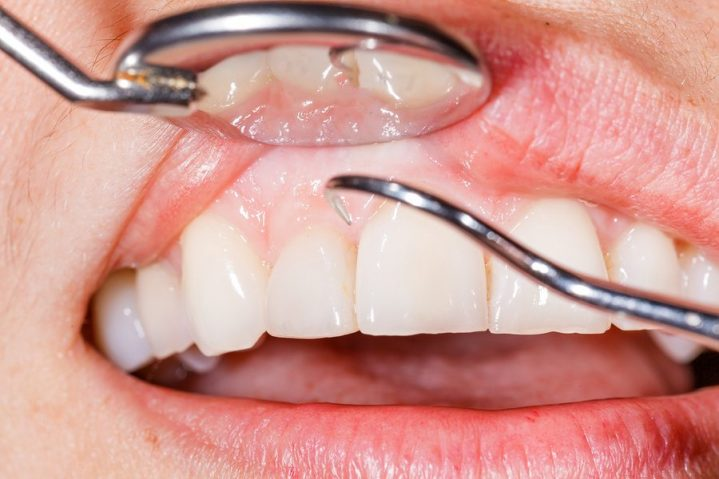 Checking for periodontal disease