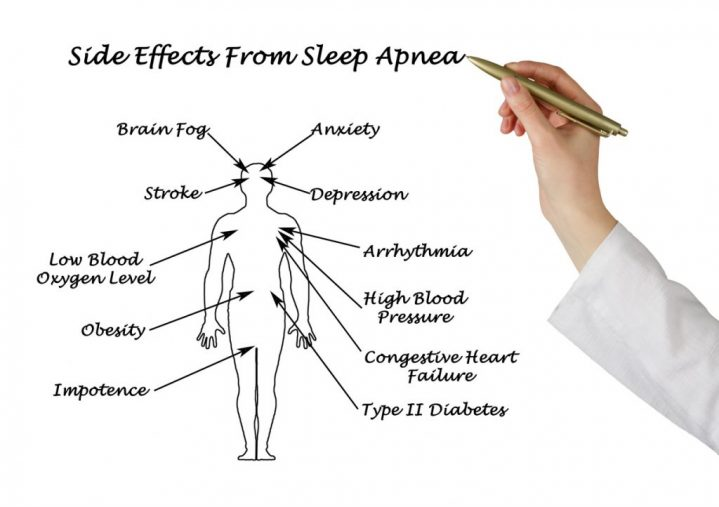 Chart showing the horrible side effects of sleep apnea.