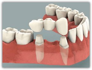 Example of a dental bridge