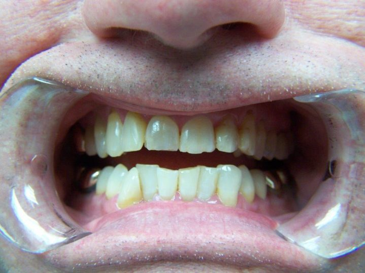Martin Crist After Teeth Close Up